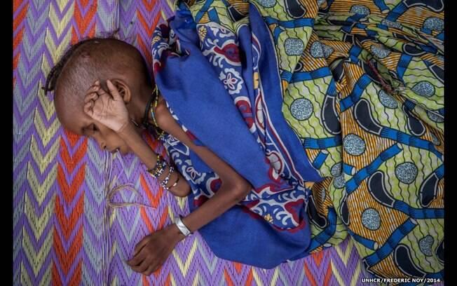 'Apesar de estar visivelmente marcada pela fome, ela (criança) se mantém graciosa', diz Frédéric Noy. Foto: Frédéric Noy/Acnur