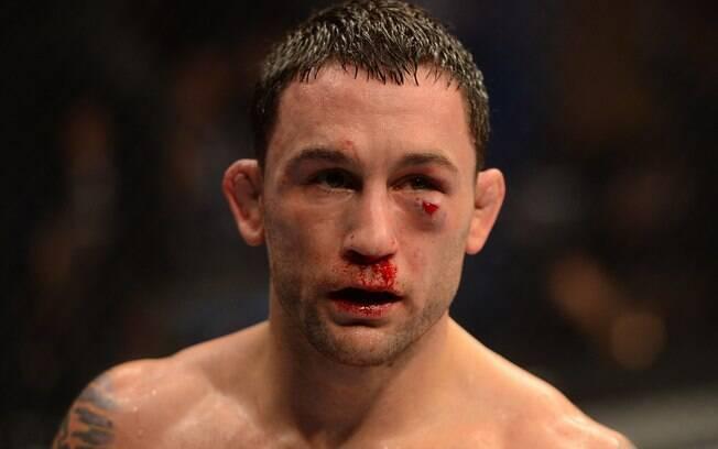 Frankie Edgar ficou com o rosto bem machucado  após luta contra José Aldo