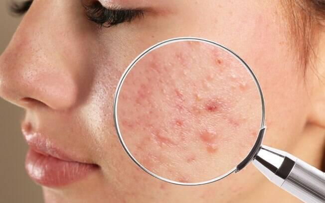 5 dicas eficazes para amenizar os efeitos causados pela acne