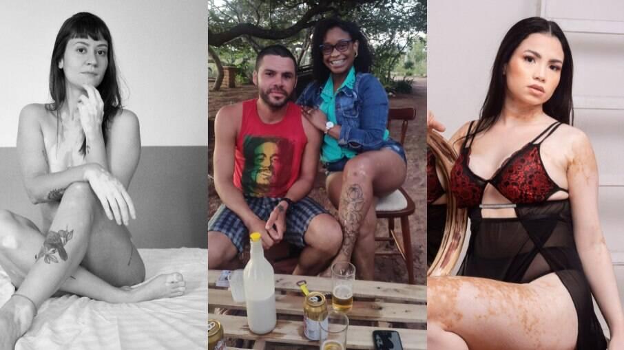 """""""Me chamaram de dálmata e barata descascada"""", elas contam sua história com o vitiligo"""