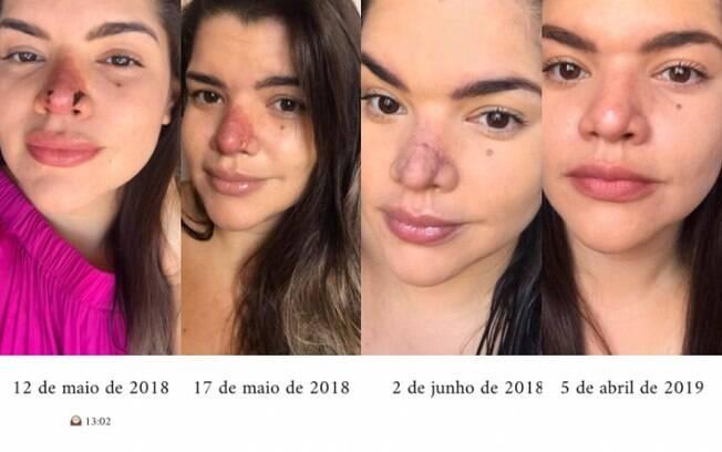 A recuperação de Priscila demorou um ano, mas ainda assim, o nariz ficou com cicatrizes que podem ser permanentes