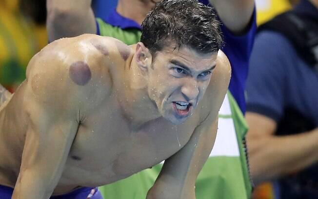 O nadador norte-americano Michael Phelps, vencedor de 19 medalhas de ouro, com marcas nos ombros e nas costas