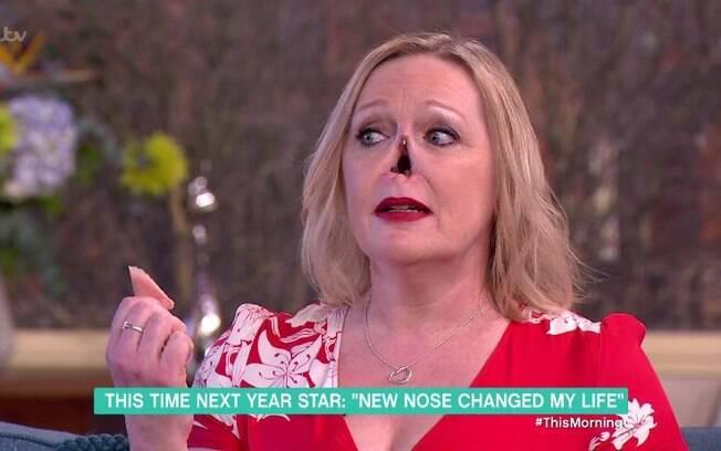 Jayne Hardman decidi tirar a prótese de seu nariz durante entrevista para mostrar como o órgão caiu de seu rosto