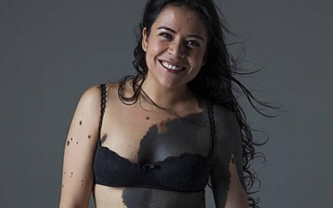 Tour da autoestima: Lorena tem uma marca de nascença que cobre mais da metade de seu corpo - e exalta amor próprio