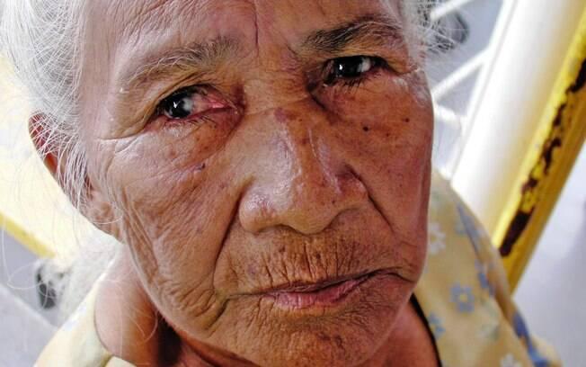 Para moradores como Inocência, 80 anos, o mundo era escuro até de dia. Tudo por causa da catarata, doença que afeta a maior parte dos adultos de Mentai