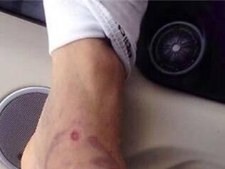 Travas da chuteira de Sheik estão marcadas na canela de Henrique