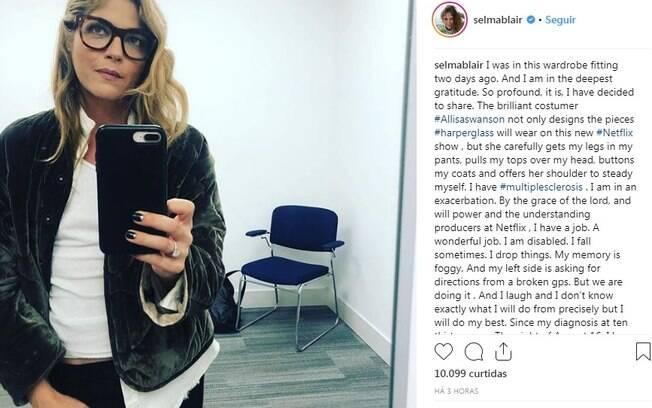 Selma Blair faz emocionante postagem no Instagram para revelar que tem esclerose múltipla