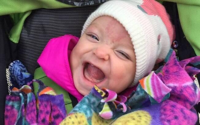 Após passar por duas cirurgias, Paisley Morrison-Johnson pode, agora, sorrir muito, comer e respirar sem aparelhos