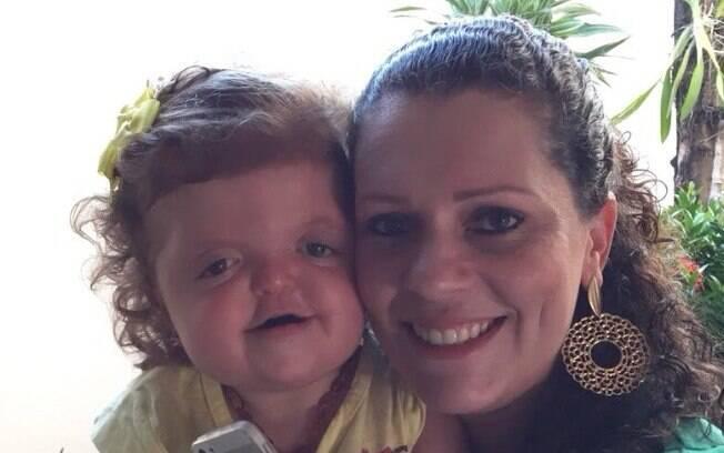 Isadora, portadora da síndrome de Apert, ao lado da mãe Graciela; a pequena já passou por seis cirurgias em dois anos