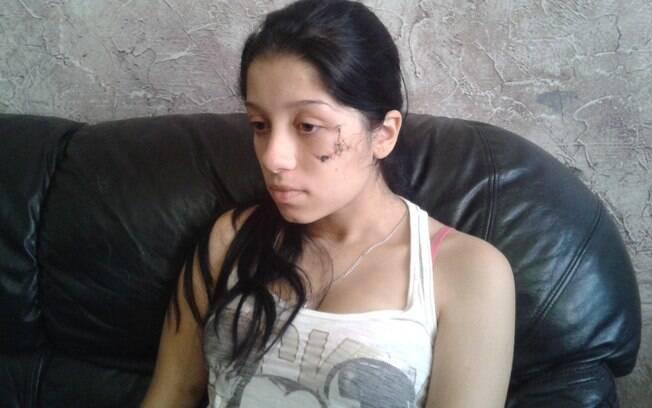 Gabriela mostra a cicatriz no rosto
