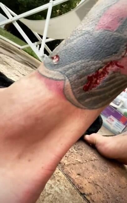 Resultado da mordida que Felipe Titto levou de seu cachorro Thor