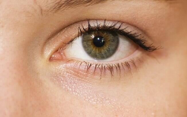 Os sintomas do retinoblastoma podem ser estrabismo, sangramento de alguma parte do olho, perda de visão e vermelhidão dos olhos