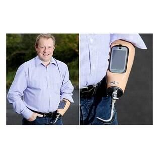 Trevor Prideaux pediu ajuda para a médicos e para a Nokia