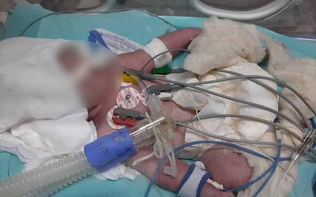 Recém-nascida está internada em estado grave