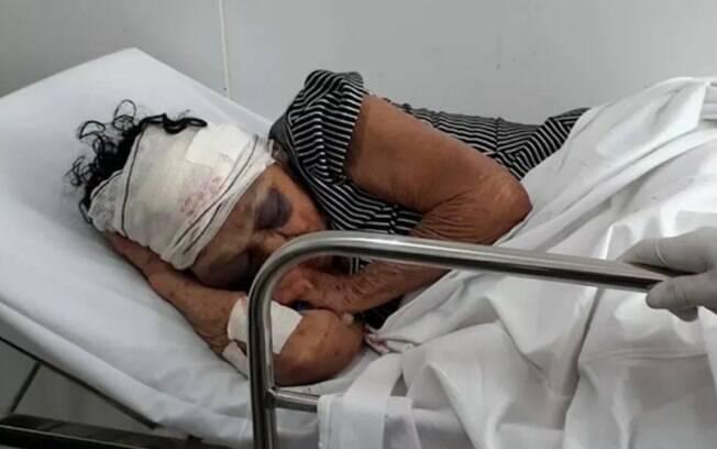 Idosa ficou internada em hospital no interior do Maranhão antes de morrer, nesta terça (23)
