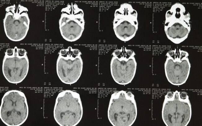 Ministério da Saúde confirmou relação entre vírus zika e microcefalia, uma má-formação no cérebro de bebês