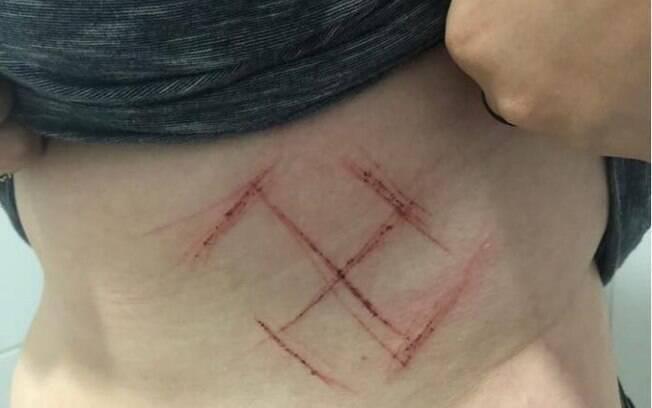 Violência política em Porto Alegre: jovem é agredida por apoiadores de Bolsonaro,  que gravaram o símbolo do nazismo na pele da vítima