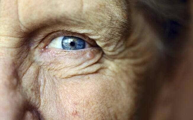Vitamina B3 ajuda a elevar níveis de antioxidantes no organismo, o que pode retardar o processo de envelhecimento da célula