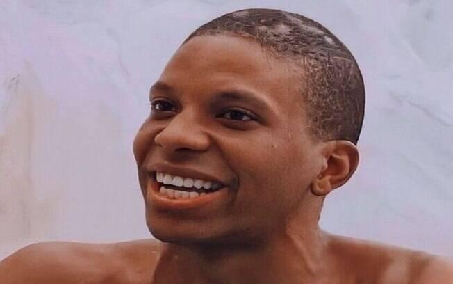 Alopecia: entenda a condição que Lucas, do BBB 21, possui na cabeça