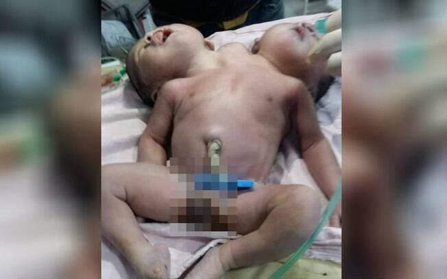 bebê com duas cabeças