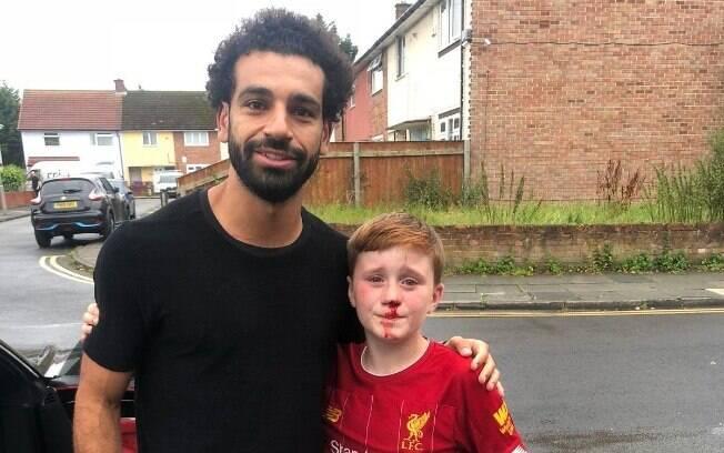 Salah tirou foto com o jovem Fowler, mesmo com o rosto ensanguentado