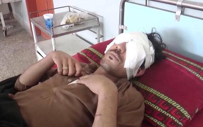 Abdul Baqi, de 22 anos, teve os olhos arrancados por seus familiares depois de informar que se casaria com namorada
