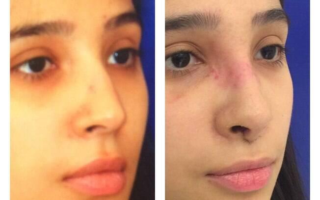 Fotos do antes e depois de uma rinoplastia