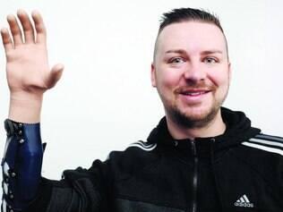 Reconstrução. Paciente austríaco Milorad Marinkovic acena com sua mão biônica, que utiliza a primeira técnica com controle da mente