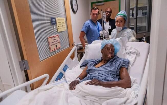 Robert Chelsea, de 68 anos, momentos antes da cirurgia de transplante de rosto que durou 16 horas e contou com uma equipe de 45 profissionais.