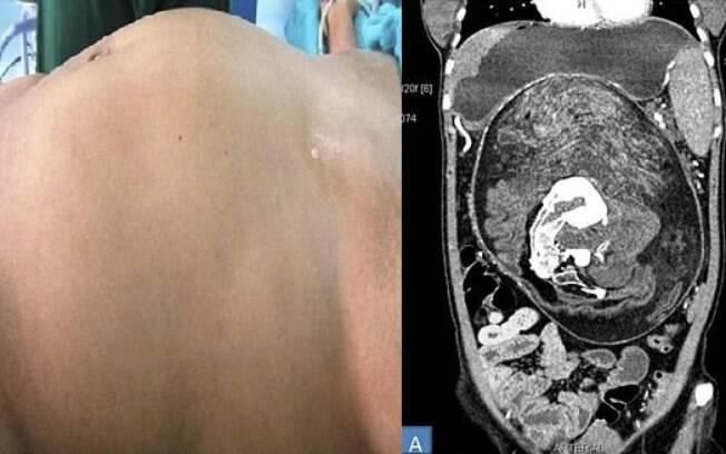 Jornal Britânico de Medicina foi responsável por reportar caso de jovem que carregava irmão gêmeo malformado na barriga