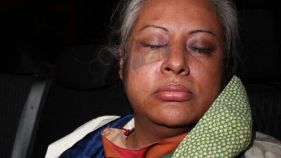 Ativista LGBTQIA+ é agredida no RIo de Janeiro