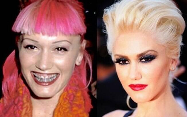 Gwen Stefani antes e depois da fama