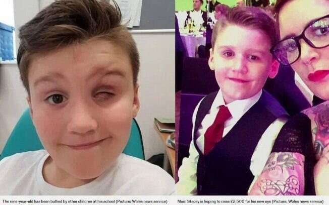 O menino perdeu a visão aos três anos e, aos nove, sofreu outro acidente que resultou na perda definitiva do olho
