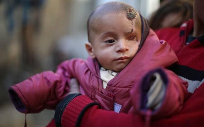 Bebê Karim perdeu o olho esquerdo na Síria