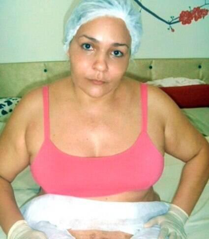 'Fui mutilada por um falso cirurgião e obrigada a fazer uma incisão em mim'
