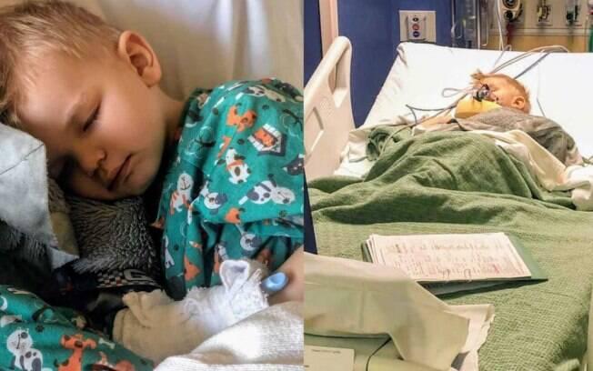 O norte-americano Nash Goddard, três anos de idade, quase morreu após engasgo com milho de pipoca