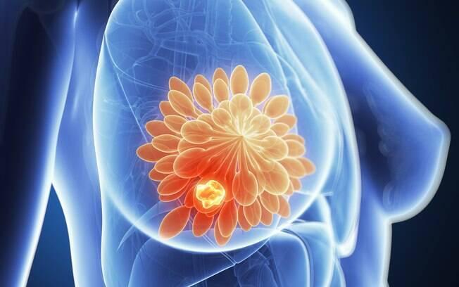 Realização do autoexame regularmente ajuda na prevenção do câncer de mama, alertam especialistas