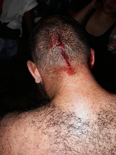 Aluno da UFPR, no Paraná, foi agredido com garrafadas por apoiadores de Bolsonaro