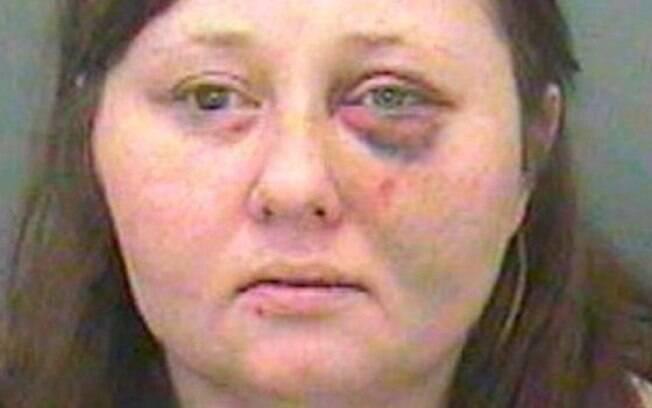 Gemma Hollings foi condenada à prisão. Segundo a polícia, os ferimentos que ela apresenta nessa foto não se relacionam com o caso
