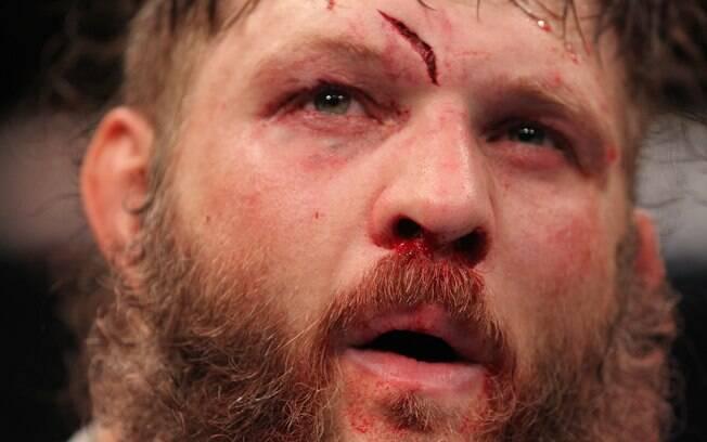 Roy Nelson - Lutadores do UFC ficaram  desfigurados após batalhas dentro do octógono