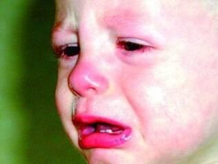 Falta da vitamina D leva ao desgate dentário de bebês