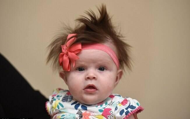 Jolee Shead ganha internet por ser uma bebê de três meses totalmente cabeluda