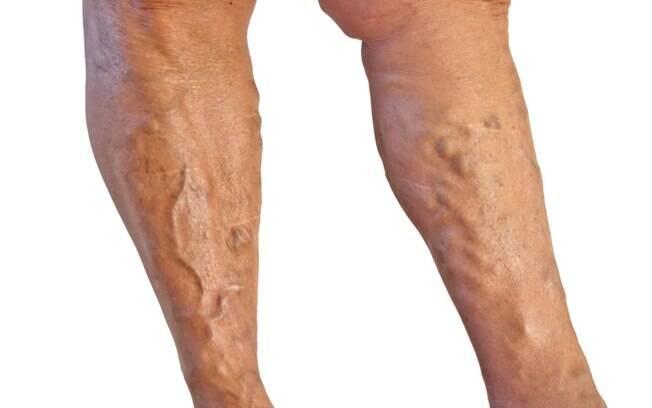 0e9146fe7 1 - Varizes  quem não tem problemas venosos e usa meias elásticas  compressoras e calças