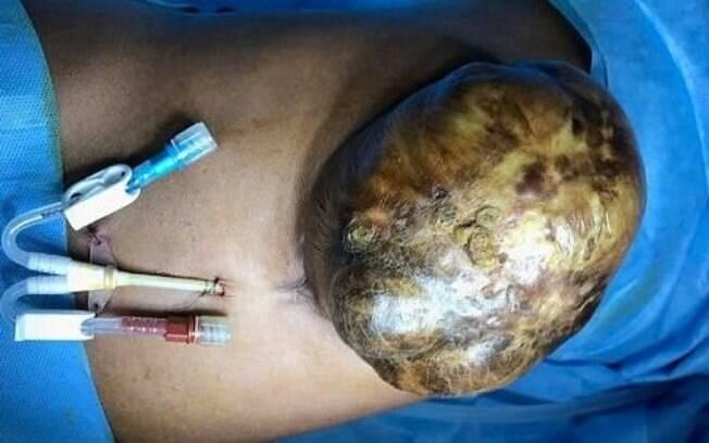 Os órgãos para fora do corpo eram o fígado inteiro da jovem e também parte de seu intestino