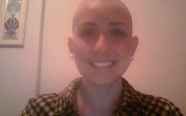 Linda mostra no blog 'Uma Linda Janela' detalhes da doença e como foi perder os cabelos durante quimioterapia