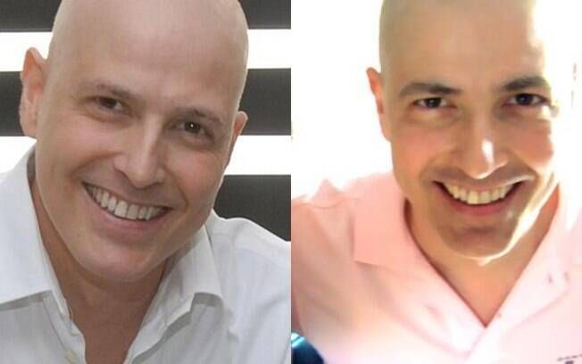 Reynaldo Gianecchini em novembro, quando deu entrevista ao Fantástico e nessa segunda (19): sobrancelhas mais grossas e cabelo raspado