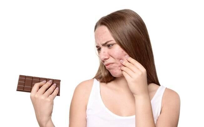 O chocolate é constantemente associado ao surgimento de espinhas na pele