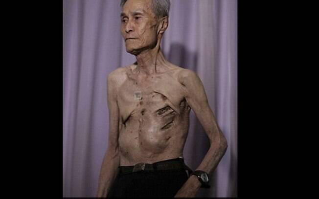 Cicatrizes profundas, fraturas expostas e muito tempo acamado: esse foi o resultado da bomba atômica sobre Nagasaki a Taniguchi. Foto: Reprodução/Daily Mail