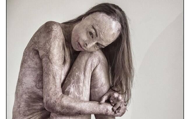 mulher com queimaduras pelo corpo