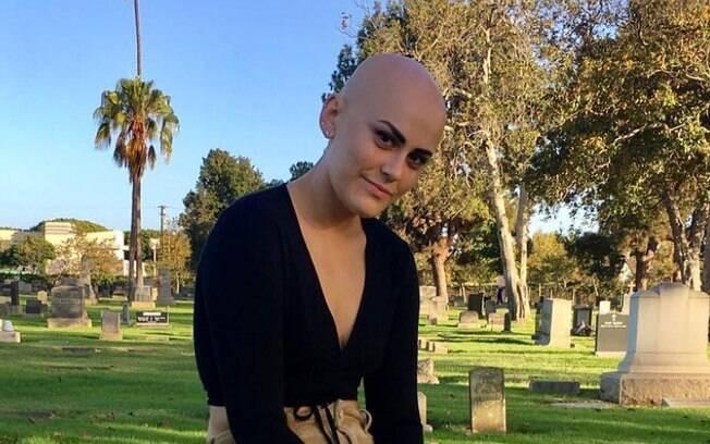 Sarah Rose Meyers começou a perder os cabelos aos 12 anos de idade e, logo depois, recebeu o diagnóstico de alopecia